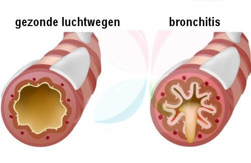 Gezonde luchtwegen en bronchitis