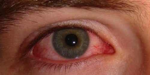 Hoe voorkom je rode ogen? Oorzaken en remedies