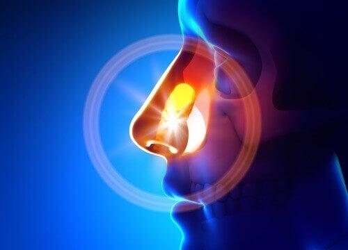 Hoe sinusitis natuurlijk behandelen