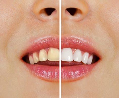 Tips voor natuurlijk witte tanden