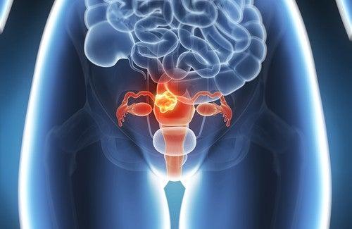 60 procent van baarmoederkanker kan worden voorkomen