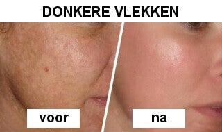 Appelazijn tegen vlekken in het gezicht