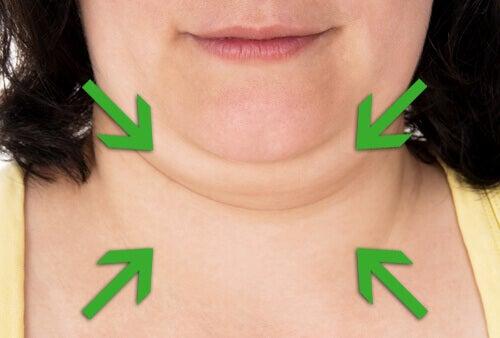 Tips om vet in de nek te reduceren