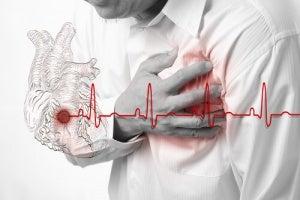 Symptomen van angina pectoris