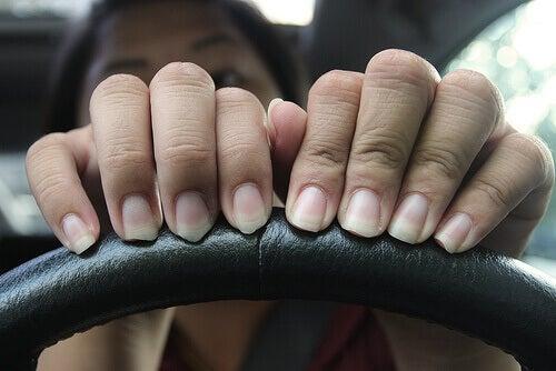 Vrouw met schilferende nagels
