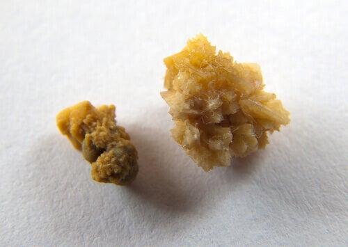 Nierstenen kunnen de kleur van urine veranderen
