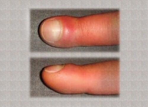 Wat veroorzaakt opgezette vingers?
