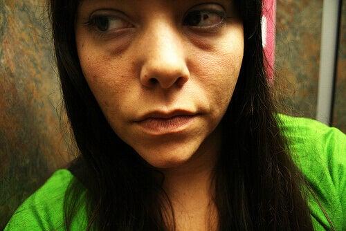 rimpels gezicht 2