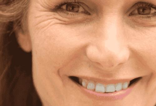 Vermijd vroegtijdige rimpels in je gezicht