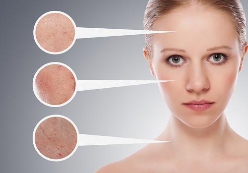 Citroensap maakt de huid lichter