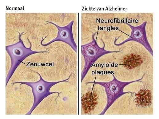 Voedsel dat beschermt tegen Alzheimer
