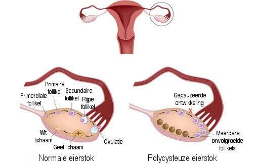 Wat is Polycysteus Ovarium Syndroom en hoe wordt het behandeld?