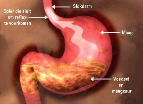 Het goede dieet voor mensen met reflux