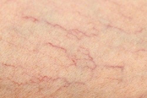 Oplossingen voor spataderen op je benen