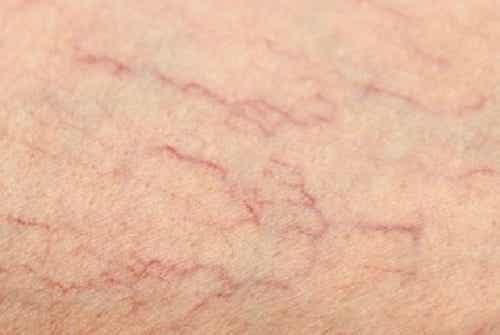 Oplossingen voor spinnenkoppen op je benen