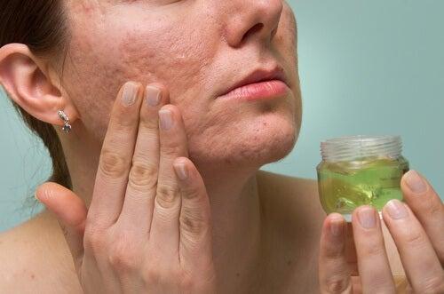 Littekens door acne behandelen