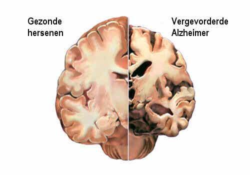 Alzheimer: tijdig de eerste symptomen detecteren