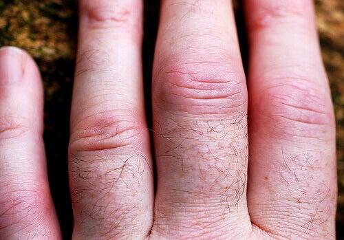 artritis-3