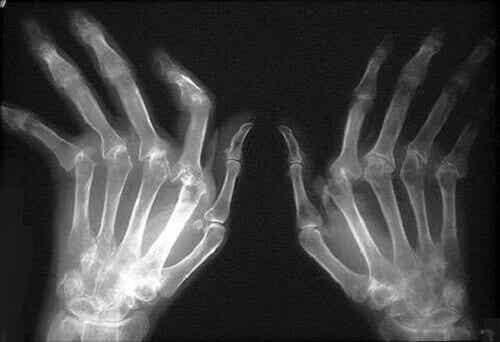 Reumatoïde artritis natuurlijk behandelen