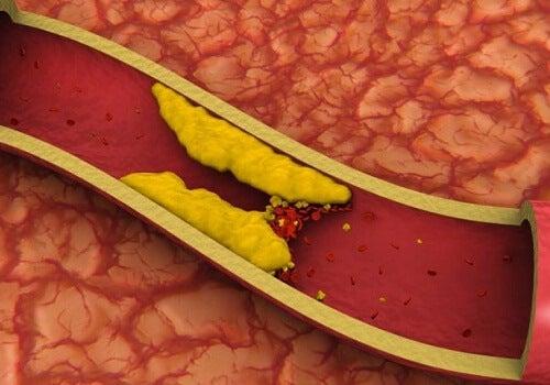 Cholesterolverlagende sappen
