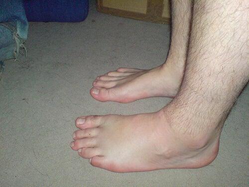 Natuurlijke diuretica tegen opgezwollen voeten