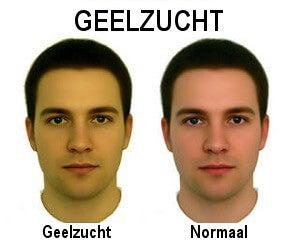 Het verschillen tussen een normale huid en geelzucht