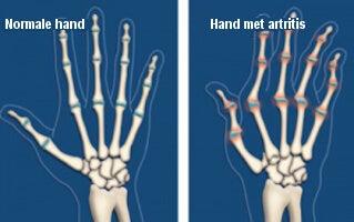 Hand met artritis