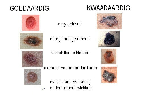 melanoom-moedervlekken
