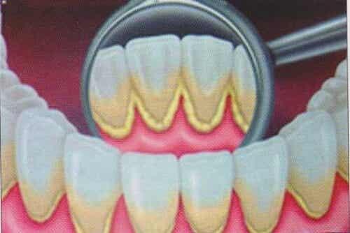 Natuurlijke remedies om tandplak te verwijderen