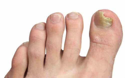 Schimmel aan je voeten? Lees onze tips