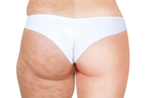 Massage om cellulite te elimineren