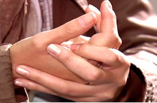 Gezwollen handen 2