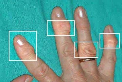 Natuurlijke remedies tegen artritis