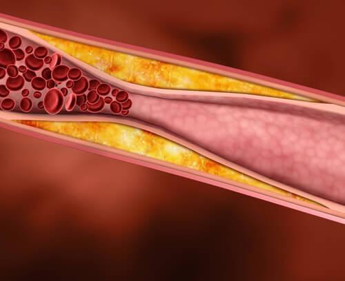 Je cholesterol verlagen met geneeskrachtige planten