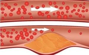 Je cholesterol verlagen met planten