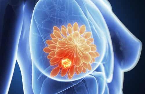 Zeven mogelijke oorzaken van borstpijn