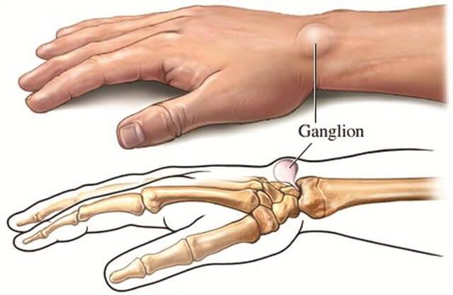 ganglion-cyste