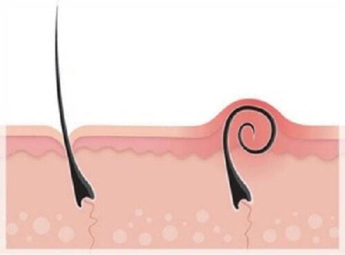 Hoe ingroeiende haartjes behandelen en voorkomen?