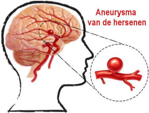 hersenaneurysma