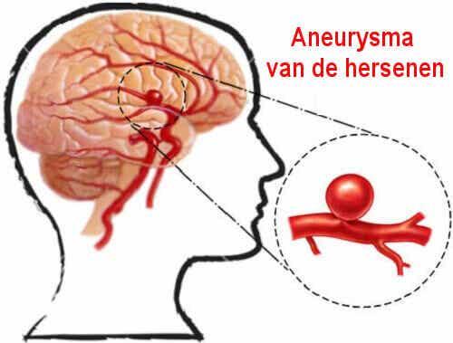 Hersenaneurysma: wat is het en hoe voorkom je het