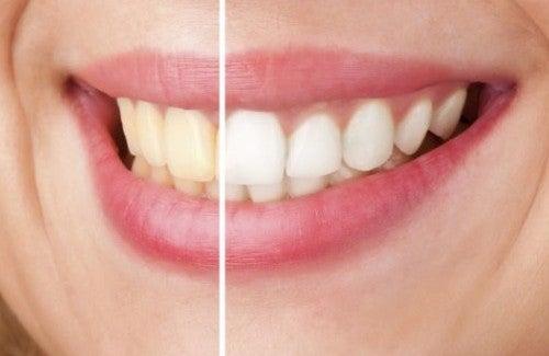 Hoe maak je op een natuurlijke wijze je tanden witter?