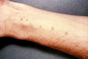 Ontcijfer de berichten van je huid als je bijvoorbeeld rode vlekjes op je polsen hebt