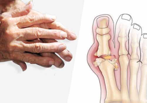 Aanbevelingen om artritis te behandelen