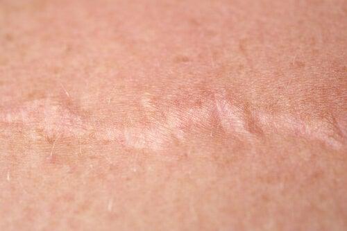 Zo gebruik je uien om littekens te behandelen