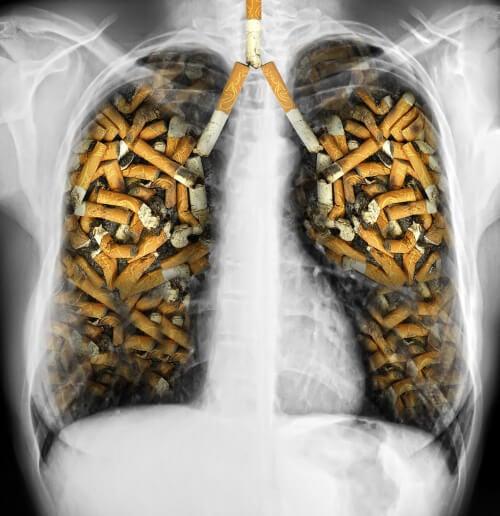 Andere negatieve effecten en waarom je dus moet stoppen met roken