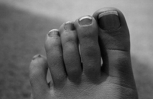 Gelakte tenen op een vrouwenvoet