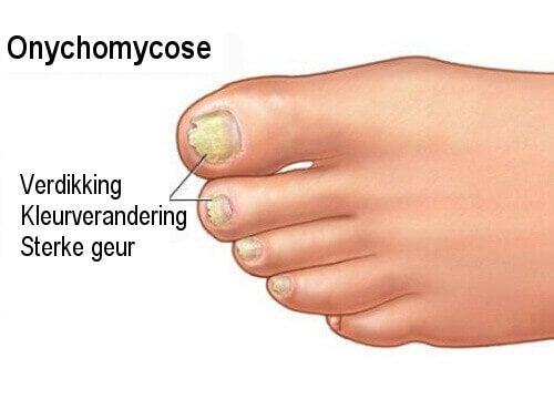 Onychomycose: nagelschimmel