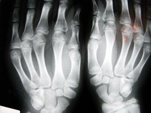 Artrose in de Vingers