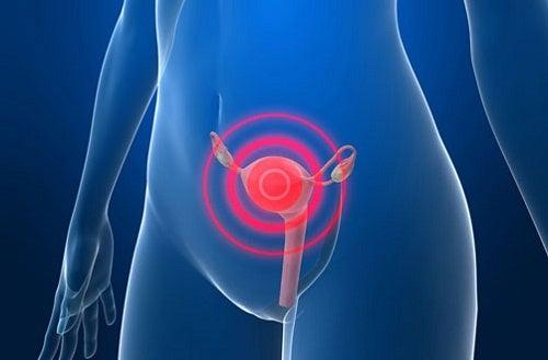 Mogelijke tekenen van baarmoederhalskanker