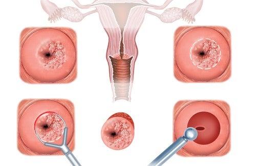 Baarmoedermonderosie behandelen